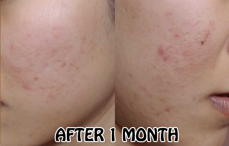 Doea Curology work? Curology review. Get rid of acne